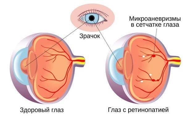 Діабетична ретинопатія , фото-1