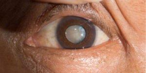 Лікування катаракти, фото-1